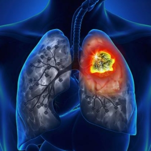 Microcellular lung cancer